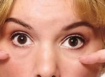 мешки-под-глазами (346x253, 49Kb)