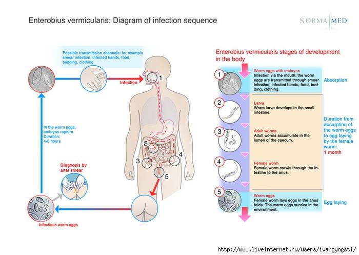 4859591_csm_schema_enterobius_vermicularis_infectionsequences_416314aa98 (700x497, 172Kb)