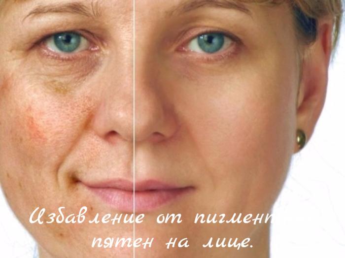 "alt=""Избавление от пигментных пятен на лице.""/2835299_Izbavlenie_ot_pigmentnih_pyaten_na_lice_ (700x524, 513Kb)"