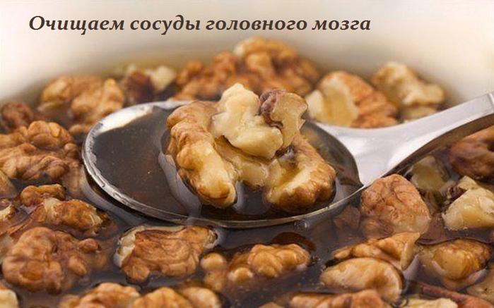 2749438_Ochishaem_sosydi_golovnogo_mozga (700x437, 442Kb)