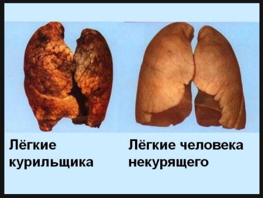 1. легкие курильщика 2 (530x400, 46Kb)