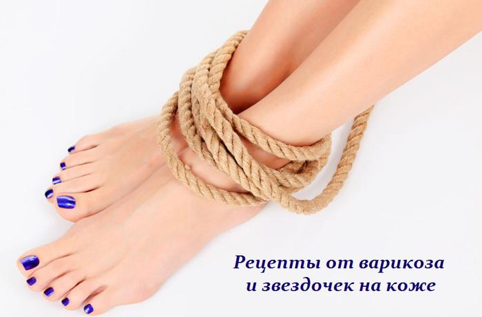 2749438_Recepti_ot_varikoza_i_zvezdochek_na_koje (700x461, 254Kb)