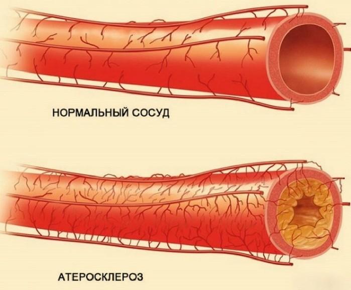 лекарство для очищения кишечника перед обследованием
