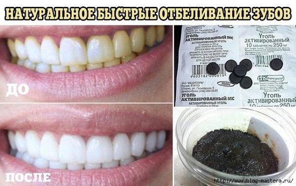 Как в домашних условиях отбелить зубы народными средствами в домашних условиях