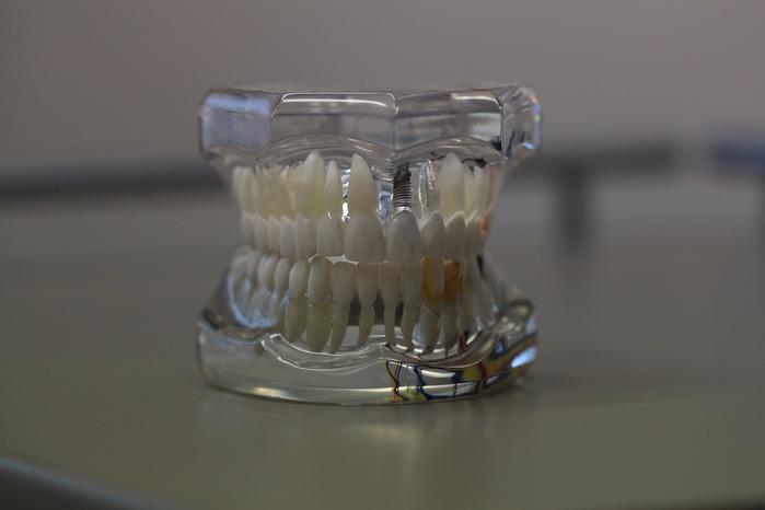 dentistry-668214_1280 (700x466, 222Kb)