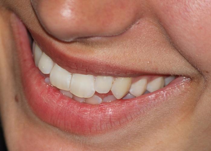 smile-665433_1280 (700x500, 340Kb)