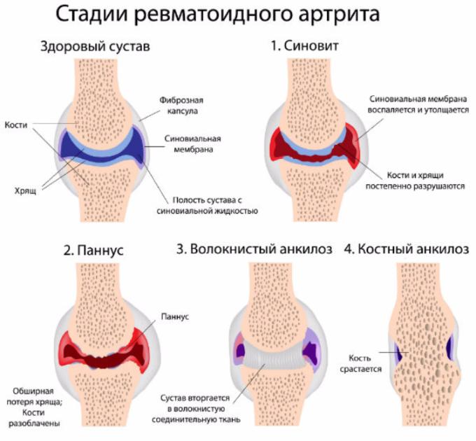 "alt=""Стадии ревматоидного артрита и помощь при артрите""/2835299__1_ (680x630, 413Kb)"