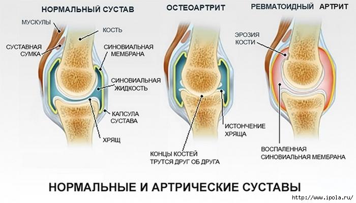 """alt=""""Упражнения при артрите коленей и бёдер""""/2835299__1_ (700x399, 175Kb)"""