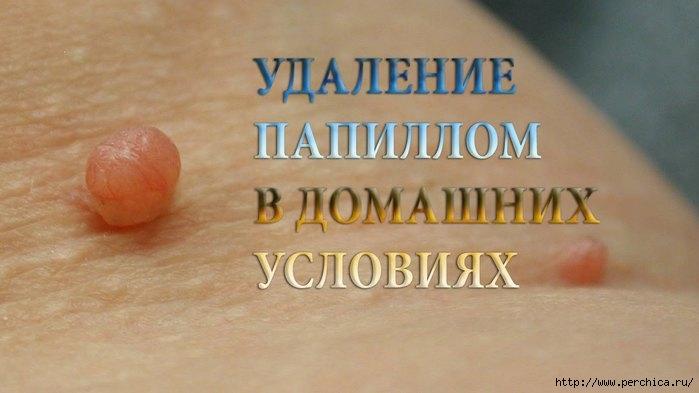 4979645_maxresdefault (700x393, 120Kb)