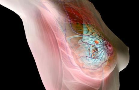 ВАЖНО! Это необходимо знать, чтобы не умереть от рака молочной железы (464x300, 14Kb)