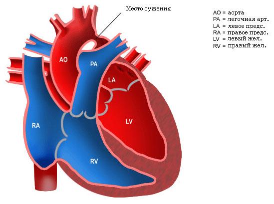 Коарктация аорты у детей/5132401_235 (549x409, 44Kb)