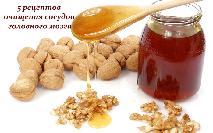 2749438_5_receptov_ochisheniya_sosydov_golovnogo_mozga (700x436, 387Kb)