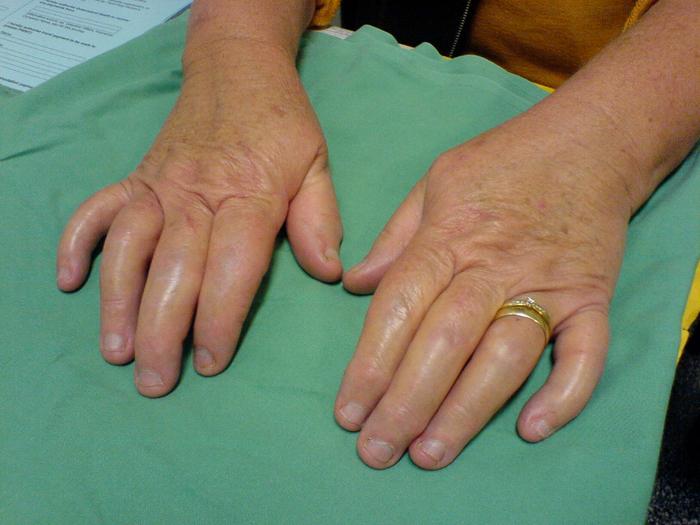 psoriatic arthritis (700x525, 486Kb)
