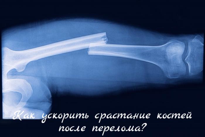 """alt=""""Как ускорить срастание костей после перелома?""""/2835299_ (700x467, 289Kb)"""