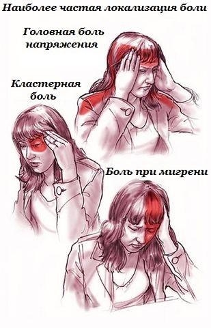 избавление от головной боли