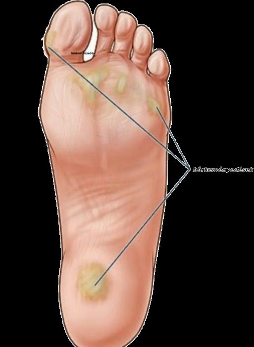 желтая кожа на ступнях