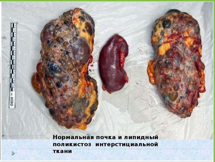 почки больные и здоровые/5239983_chistka_pochki_bolnie_i_zdorovaya (700x526, 533Kb)