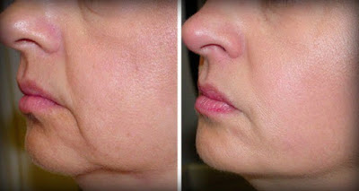 no-wrinkles-sagging-skin-face-2-ingredients (400x213, 18Kb)