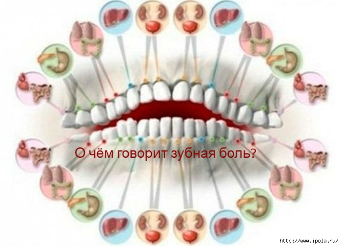 "alt=""О чём говорит зубная боль?""/2835299_1O_chyom_govorit_zubnaya_boly_811x586 (700x505, 151Kb)"