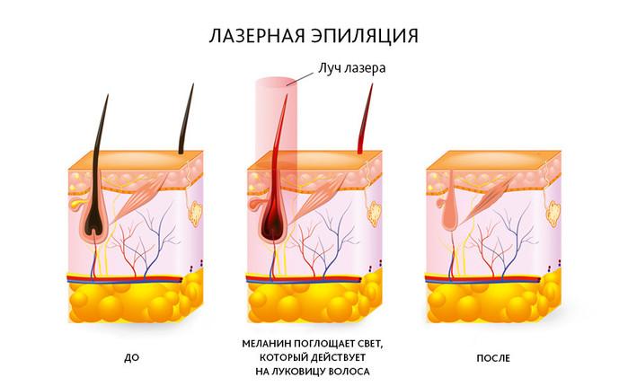 2835299_Lazernaya_epilyaciya_v_salone_Epilas_i_eyo_preimyshestva (700x430, 68Kb)