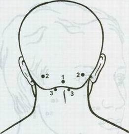 синдром (262x273, 10Kb)