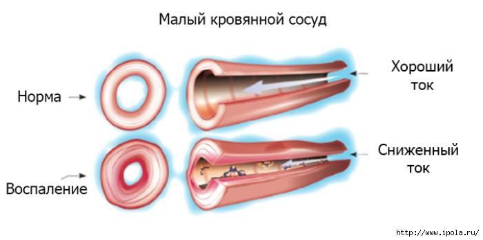 """alt=""""Что такое васкулит и как с ним бороться?""""/2835299__2_ (700x349, 86Kb)"""
