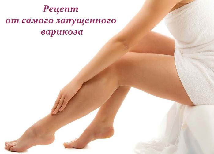 2749438_Recept_ot_samogo_zapyshennogo_varikoza (700x504, 233Kb)