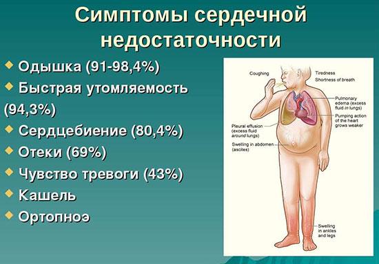 Сердечная недостаточность/5132401_241 (550x384, 55Kb)