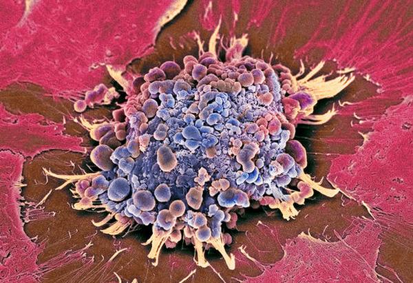 Как биологический компьютер разрушает раковые клетки