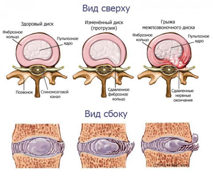 5864031_simptomi_protruzii_pozvonochnika_poyasnichnogo_otdela (700x579, 59Kb)