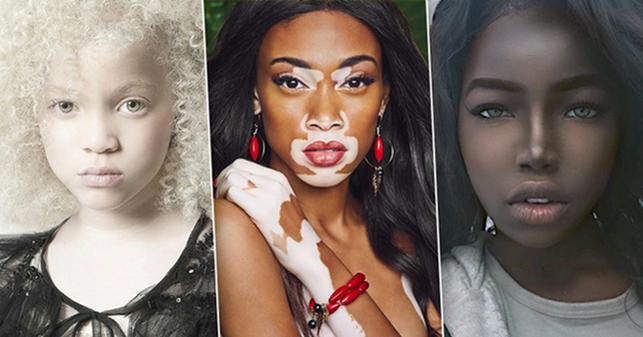 Люди ссамым необычным цветом кожи