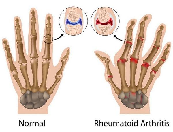 артрит пальцев рук (600x456, 158Kb)