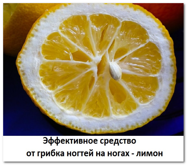 Лечение грибка ногтей лимонным соком