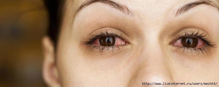 Как устранить усталость и сухость глаз/6210208_kapli_dlya_glaz_ot_ystalosti (700x280, 87Kb)
