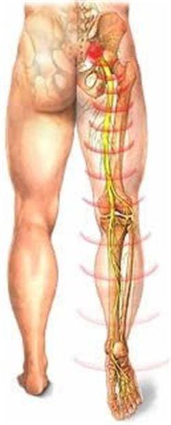 боли в ногах после операции на грыжу