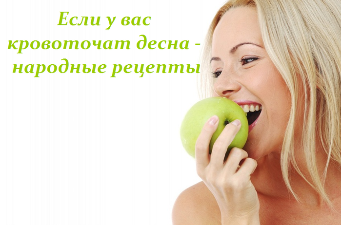 2749438_Esli_y_vas_krovotochat_desna__recepti (700x462, 275Kb)