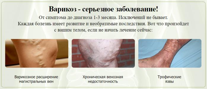 Viatonica от варикоза/6210208_viatonica_ot_varikoza (700x299, 233Kb)