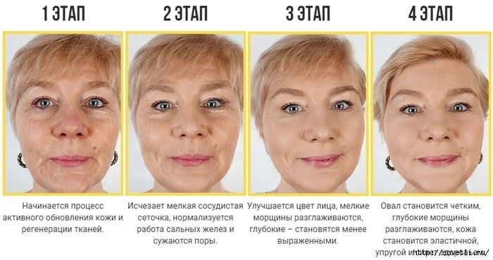 Преимущества золотой маски GoldenLift/6210208_GoldenLift_1_ (700x369, 168Kb)