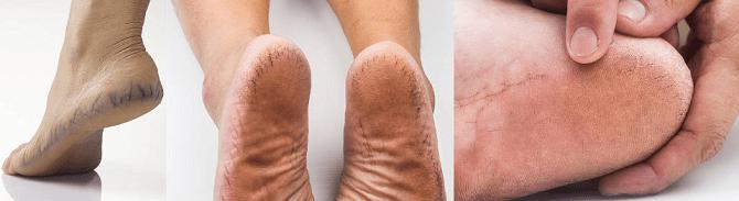 Причины грубой кожи на пятках/6210208_prichiny_ogrubevshej_kozhi_na_pyatkax (670x183, 66Kb)