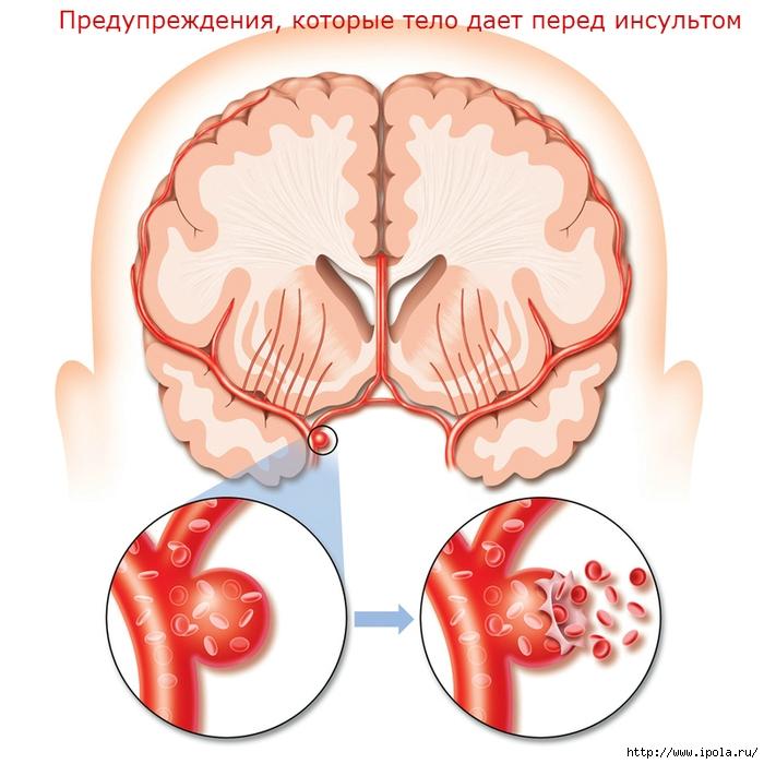 """alt=""""предупреждения, которые тело дает перед инсультом""""/2835299_Predyprejdeniya_kotorie_telo_daet_pered_insyltom (700x700, 263Kb)"""