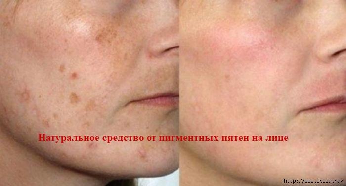 """alt=""""Натуральное средство от пигментных пятен на лице""""/2835299_ (700x376, 150Kb)"""
