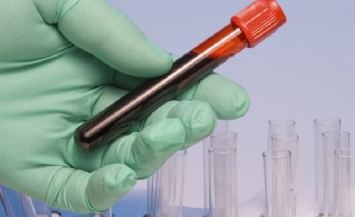 10 детективов и триллеров, где преступления тесно связаны с медициной