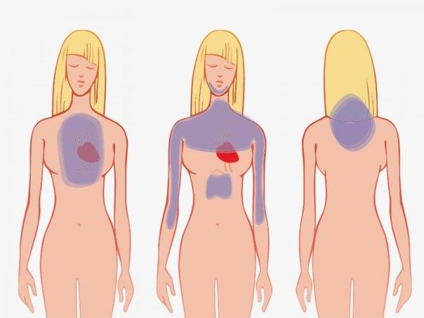 Как распознать сердечный приступ за месяц до того, как он случится (604x453, 31Kb)