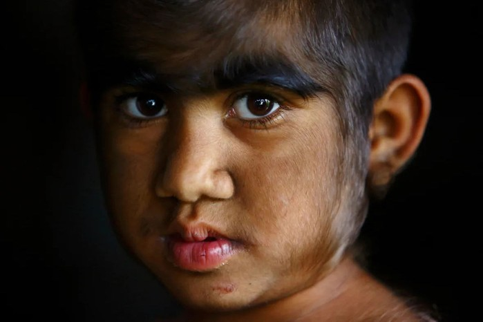 Редкое заболевание сделало детей похожими на оборотней