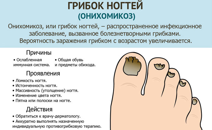 gribok_nogtei (700x431, 61Kb)