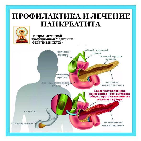 Панкреатит Симптомы У Женщин Диета