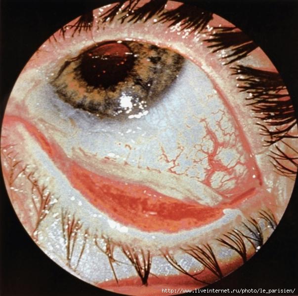 Рис. 4. Термохимический ожог глаза