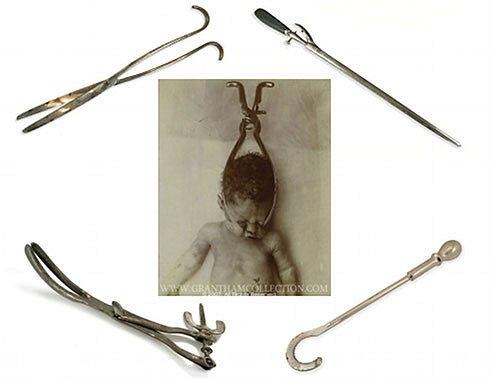 Кефалотриб Блота и Британский декапитатор  Кефалотриб - этот инструмент сокрушает и распластывает голову ребенка. Декапитатор - у этого инструмента есть зазубренный край, что облегчает дробление головы ребёнка.