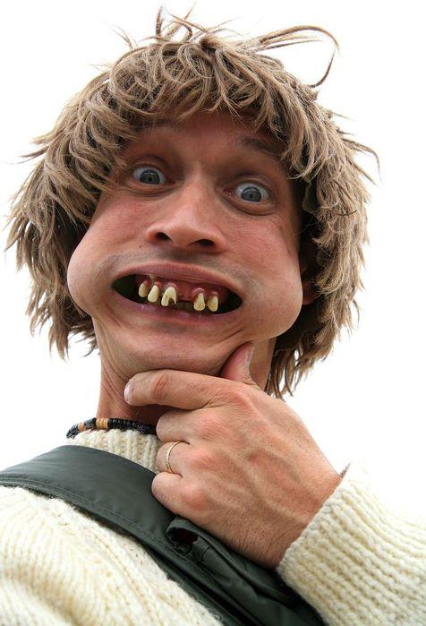 Кривой зуб картинки смешные