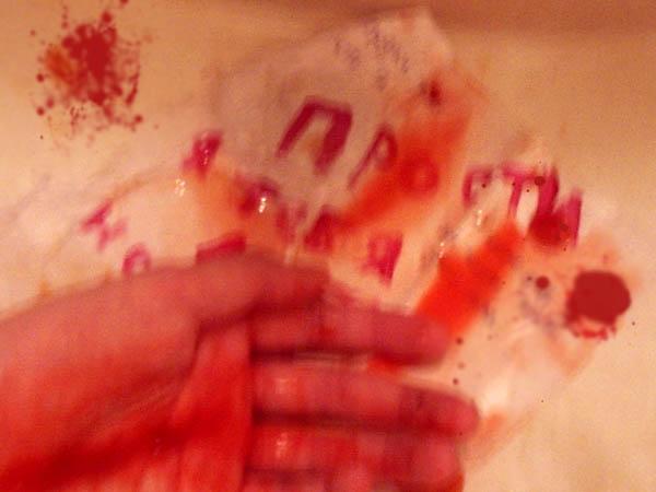 фото руки разбитые